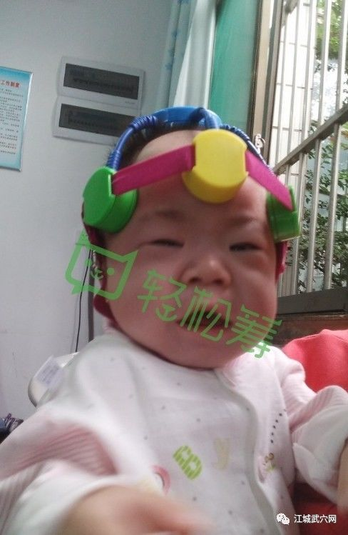 武穴1岁多宝宝确诊为脑性瘫痪,她妈妈想牵着她