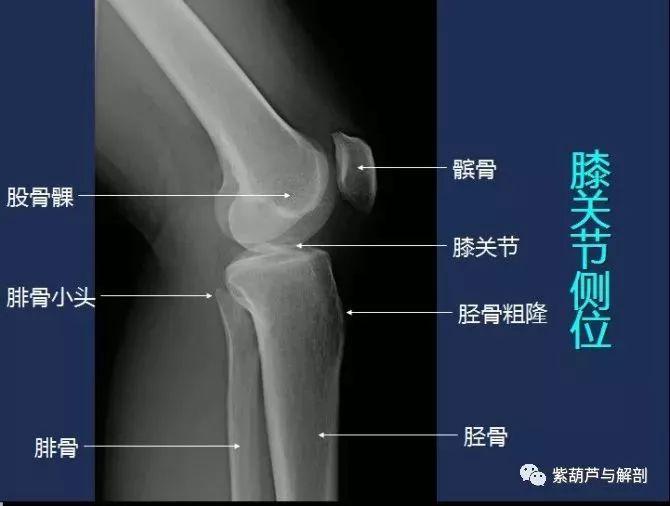 从骨性结构,肌肉韧带等软组织全面解读膝关节的运动功能