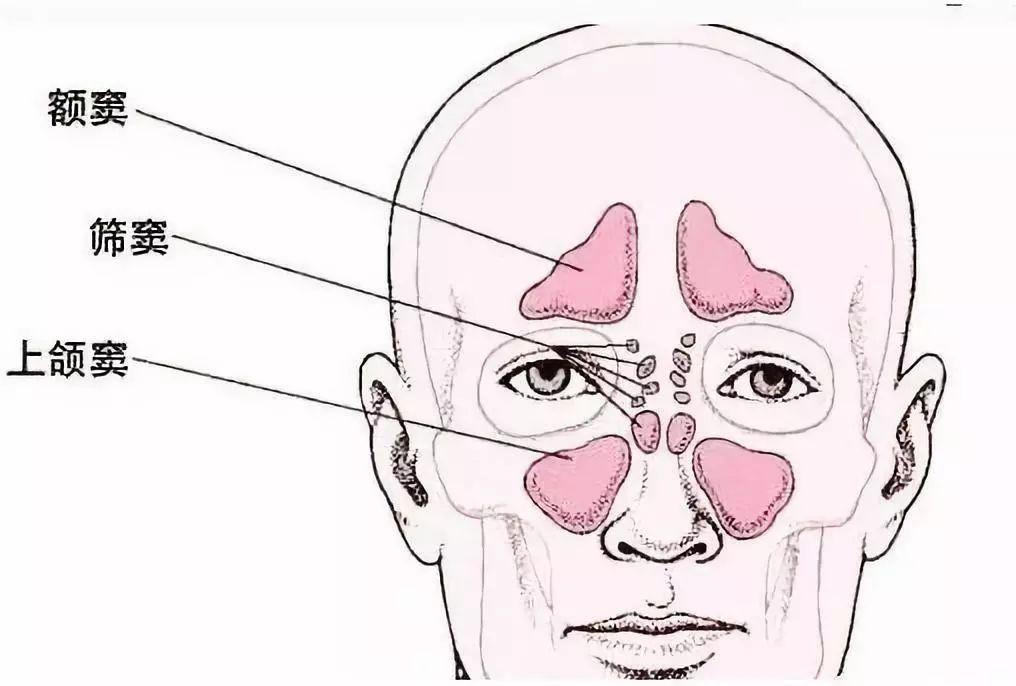 小孩鼻窦炎的症状_鼻窦炎的症状和治疗方法_鼻窦炎的症状?