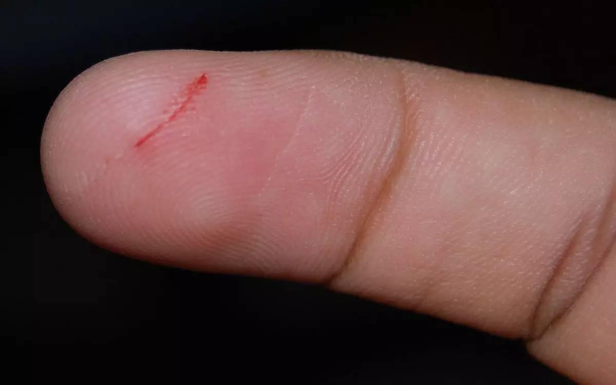 被纸片割破的伤口为什么这么疼? - 老泉 - 把酒临风的博客