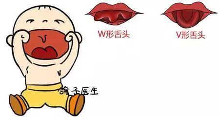 大舌头怎么办_孩子说话自带\